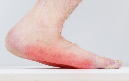 flatfoot - surgery